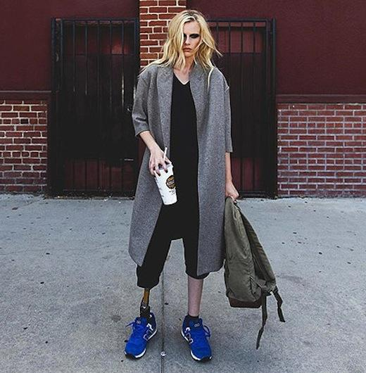 Model Lauren Wasser Loses Both Legs to Toxic Shock Syndrome
