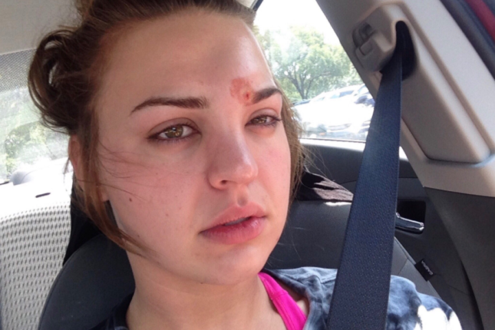 Girl Who Didnt Wash Her Makeup Brushes Almost Died