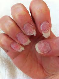 How To Take Care Of Your Nails After Acrylics The Paper Cut