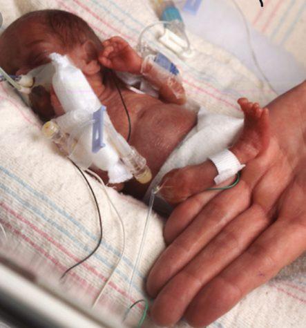 Miracle Babies-Born Way Too Early