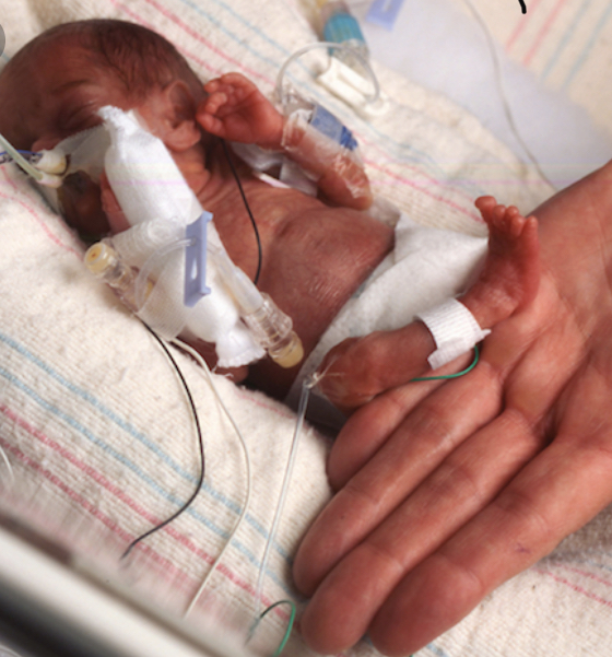 Miracle+Babies-Born+Way+Too+Early